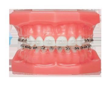 Tips Membeli Dan Merawat Gigi Palsu